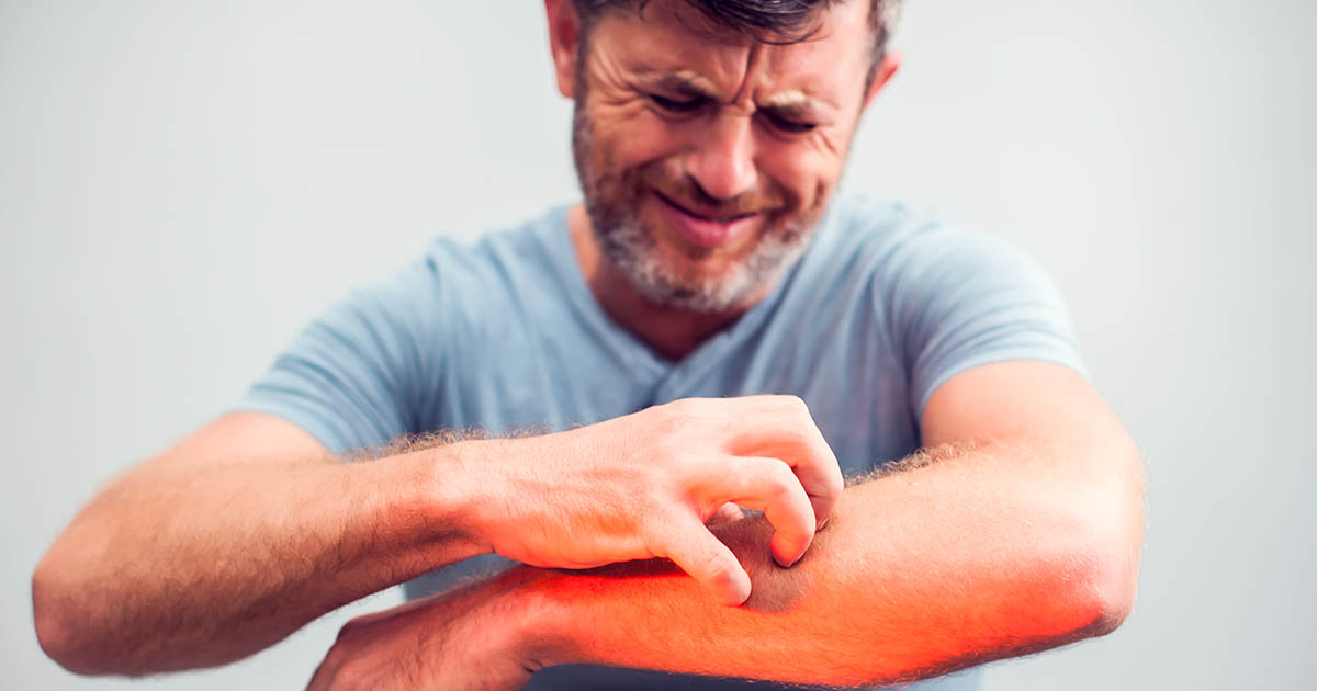 Man with skin problem